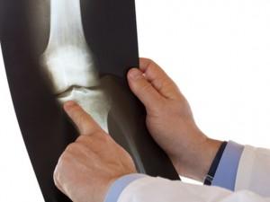 Konsultacje ortopedyczne